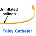 What Is A Foley Catheter?